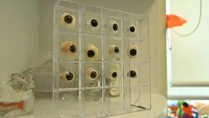 nuh-ocularist-eye-prostheses